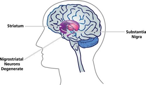 Những nguyên nhân thường gặp của bệnh Parkinson 1
