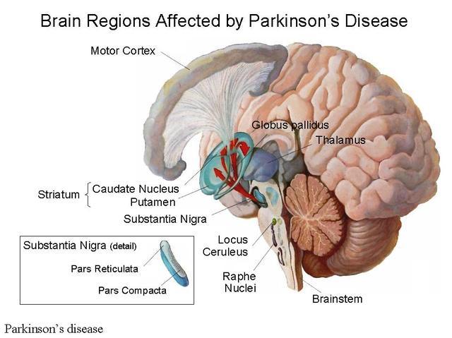 Những nguyên nhân thường gặp của bệnh Parkinson 2