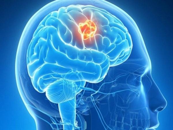 Cách phân biệt u não lành tính và ác tính 1