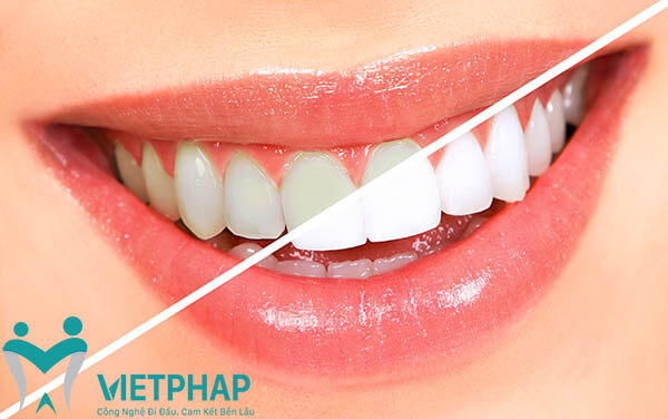 Đối tượng nên áp dụng Công nghệ tẩy trắng răng Laser Whitening