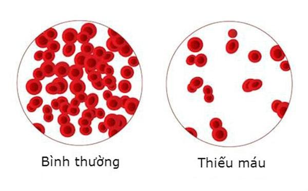 Thế nào là thiếu máu? Làm thế nào để phòng ngừa thiếu máu bẩm sinh? 1