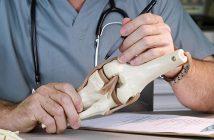 Mách bạn cách chữa trị viêm xương khớp an toàn, hiệu quả